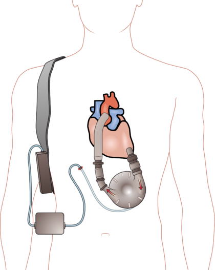 420px-Ventricular_assist_device.png