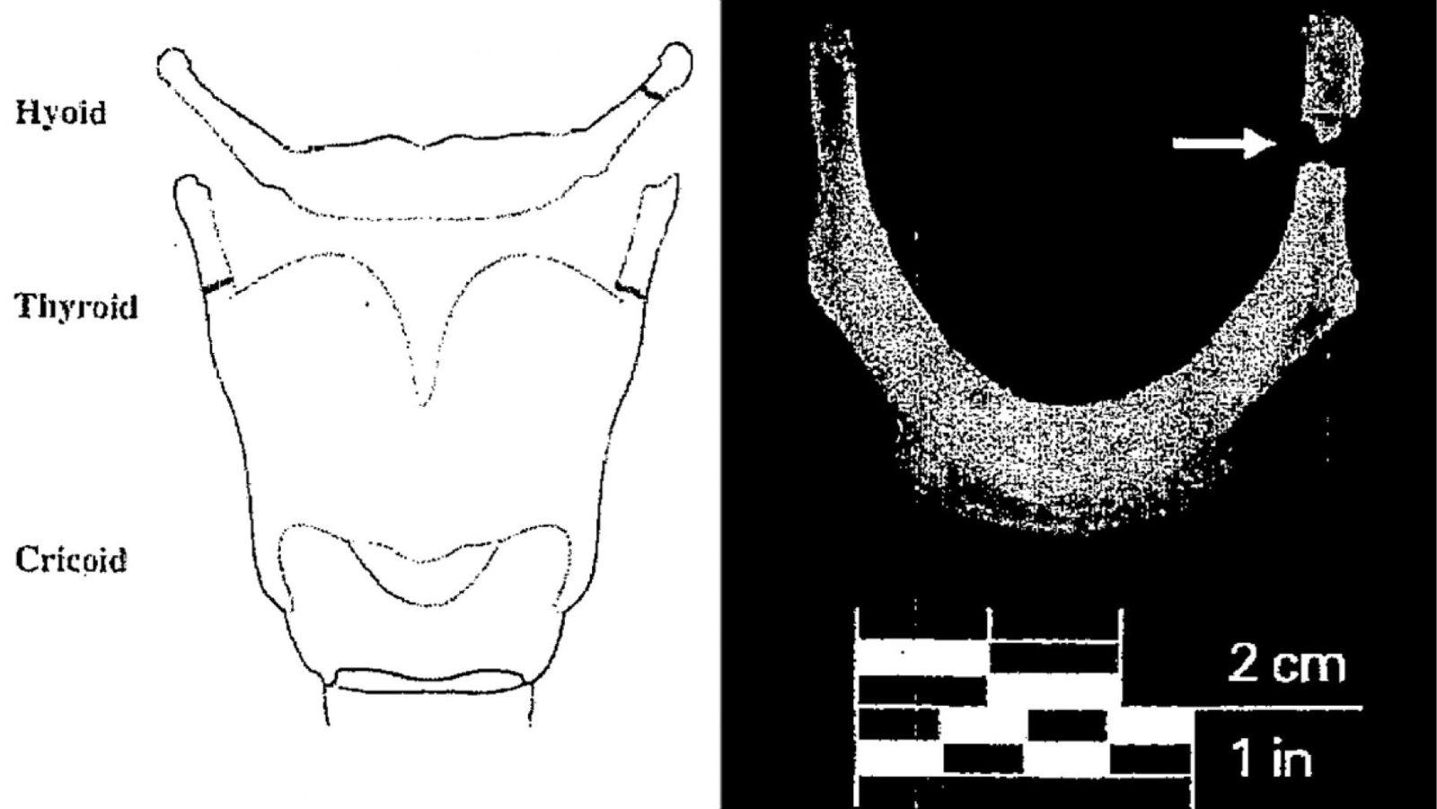 fracture-epstein-1.jpg