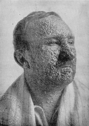 SmallpoxvictimIllinois1912.