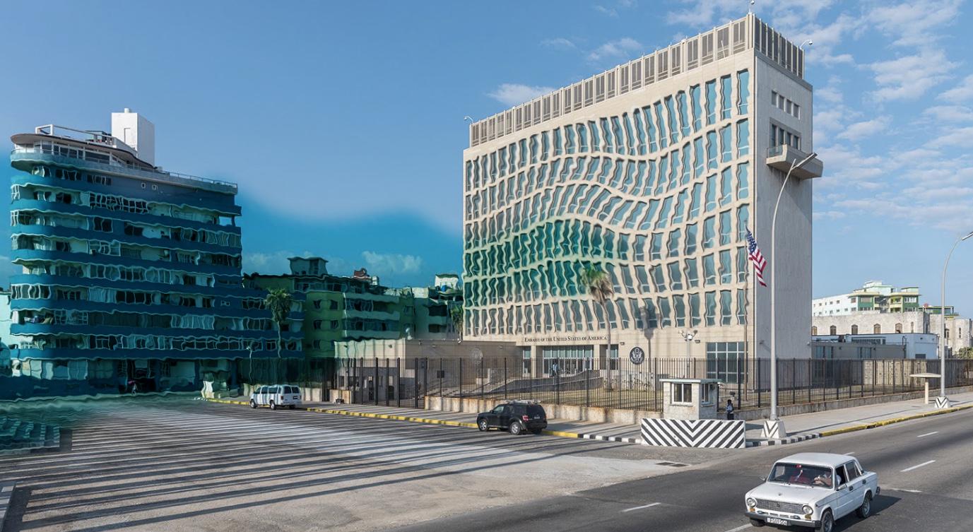 US Embassy Havana Cuba Sonic Attack.