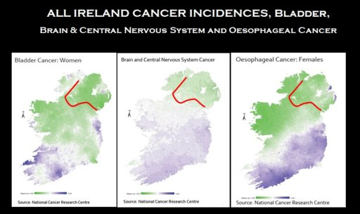 Ireland Cancers Bladder:Brain.