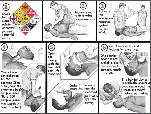 How to perform CPR Guide A.jpg