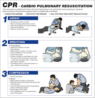 How to perform CPR Guide C.jpg